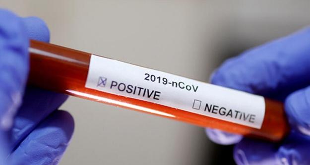 Niğde'de Koronavirüsten ölenlerin sayısı 39'a yükseldi